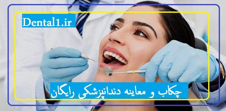 چکاب و معاینه دندانپزشکی رایگان