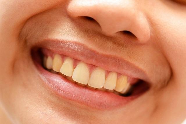 از بین بردن زردی دندان ها