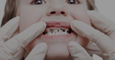 سیاهی دندان کودکان