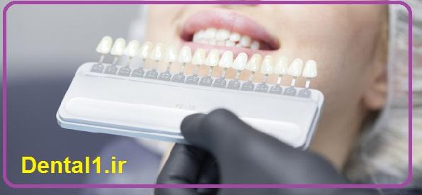 بهترین دندانپزشک در تهران
