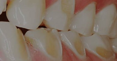 فرسایش دندان
