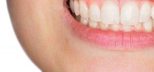 لثه و لبخند