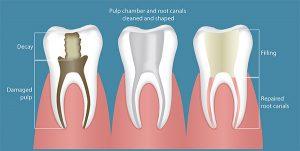 شکل شماتیک دندان ها و عصب آنها