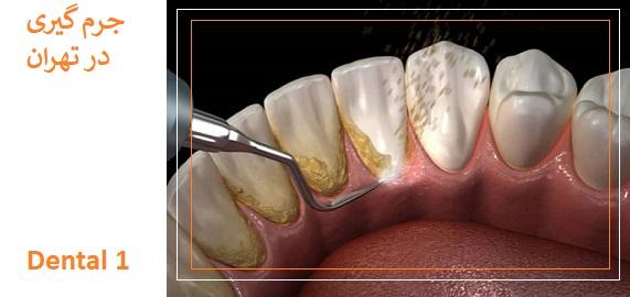 تمیز کردن کامل و جرم گیری دندان