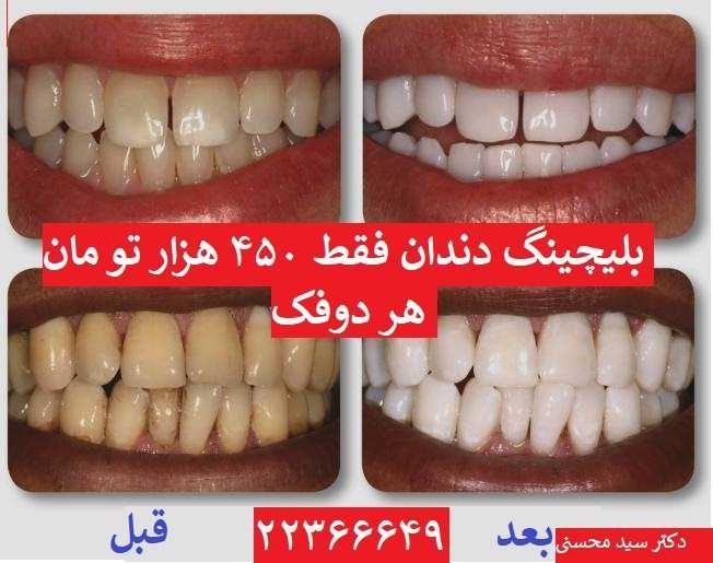 تخفیف بلیچینگ دندان