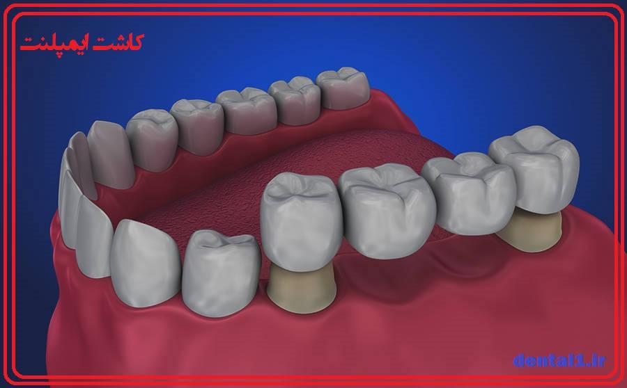 ایمپلنت دندانپزشکی ، بریج دندان