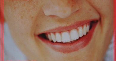 دندان ها و لبخند یک زن