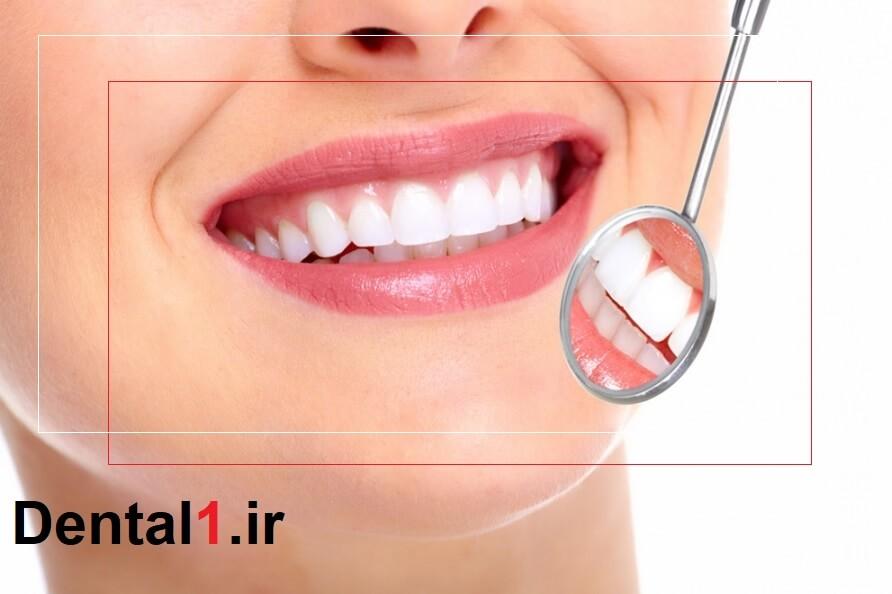 لبخند زیبا یکی از ویژگی های کلینیک دندانپزشکی پاسداران