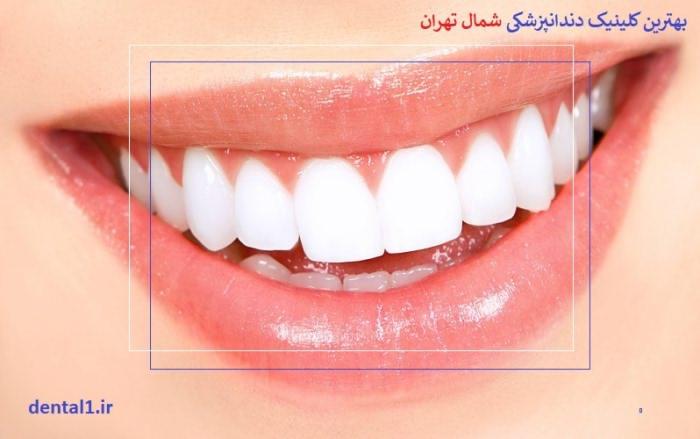 بهترین کلینیک دندانپزشکی در شمال تهران