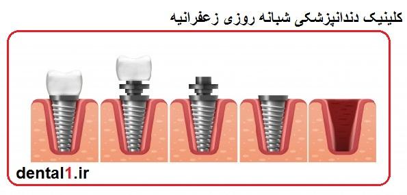 دندانپزشکی شبانه روزی زعفرانیه