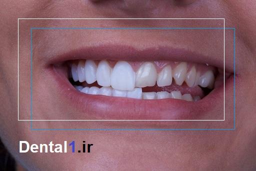 لمینت در مرکز دندانپزشکی الهیه