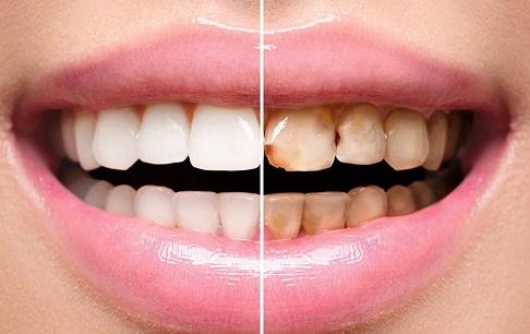 با مرکز دندان پزشکی شبانه روزی تجریش لحظات جالبی را تجربه کنید