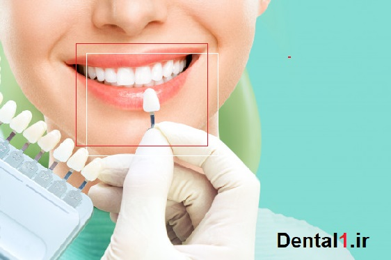 دندانپزشکی در جردن