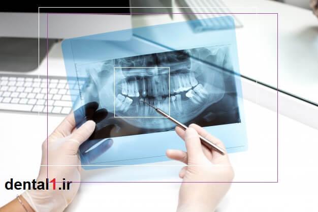 تحلیل عکس X ray بیمار