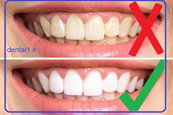 زردی دندان و دلایل ان
