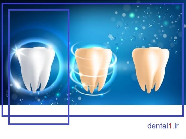 جرم گیری دندان ها در مرکز دندانپزشکی در صادقیه