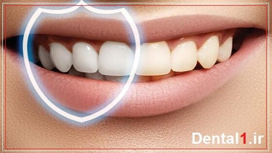 محافظت از دندان