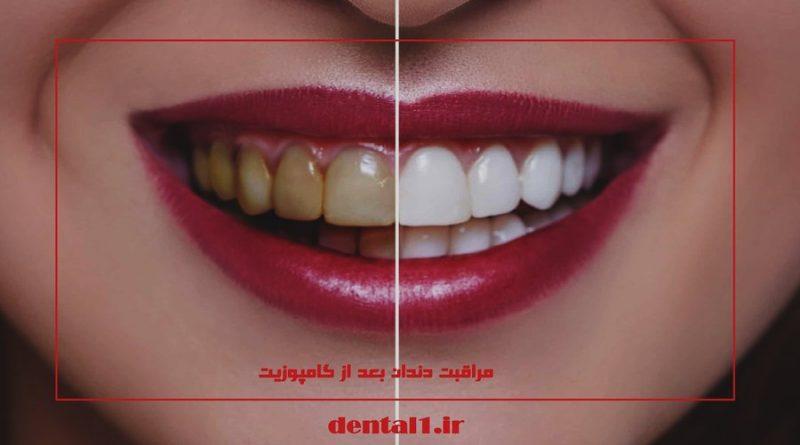 مراقبت دندان بعد از کامپوزیت