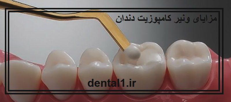 مزایای ونیر کامپوزیت دندان