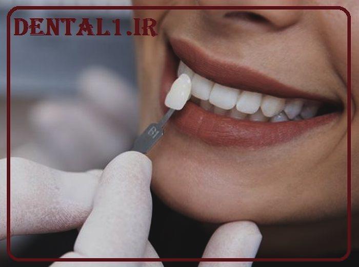 عوارض ونیر کامپوزیت دندان