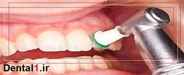 خدمات کلینیک دندانپزشکی در زعفرانیه
