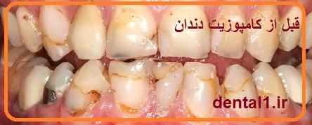 ونیر دندان در تهران