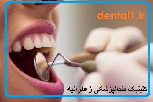 بهترین دندانپزشکی در زعفرانیه