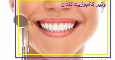 بهترین مرکز ونیر کامپوزیت دندان در تهران