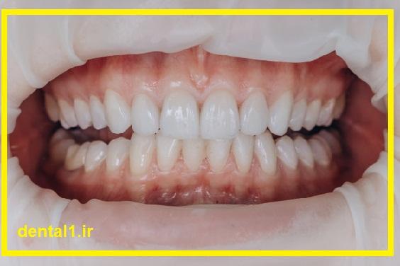 کاشت ایمپلنت دندان در غرب تهران