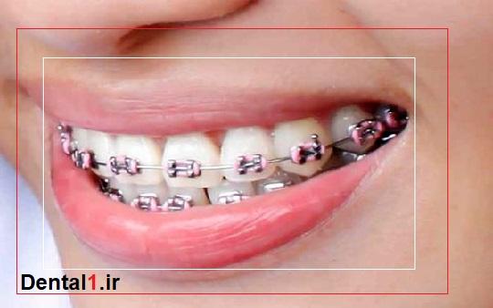 ارتودنسی توسط بهترین پزشک دندانپزشک در زعفرانیه