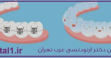 بهترین دکتر ارتودنسی غرب تهران