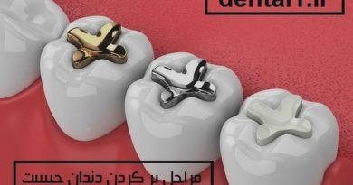 مراحل پر کردن دندان چیست