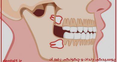 همه چیز کشیدن دندان عقل