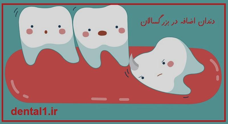 دندان اضافه در بزرگسالان