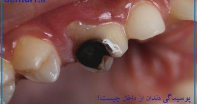 پوسیدگی دندان از داخل