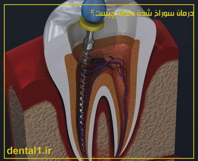 علت سوراخ شدن دندان