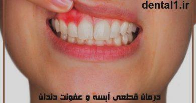 درمان قطعی آبسه و عفونت دندان