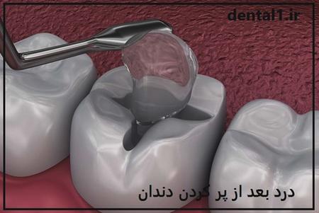 درد بعد از پر کردن دندان