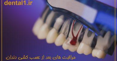 مراقبت های بعد از عصب کشی دندان