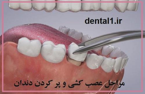 مراحل عصب کشی دندان و پر کردن دندان
