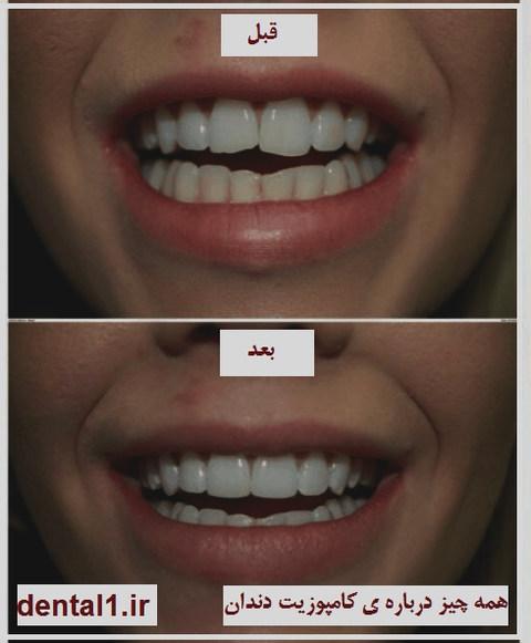 همه چیز درباره ی کامپوزیت دندان