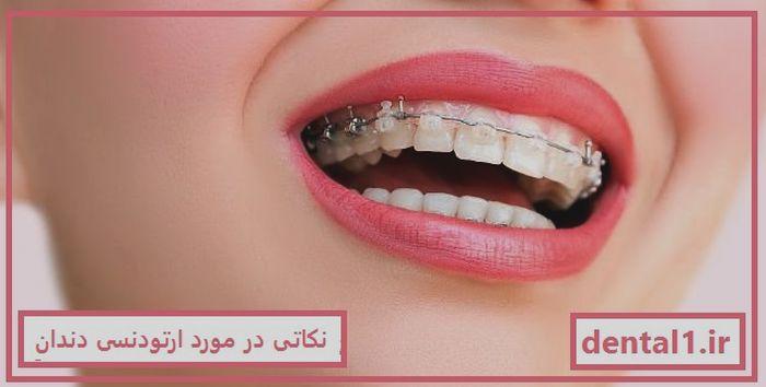 نکاتی در مورد ارتودنسی دندان