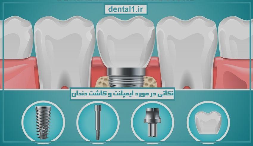 نکاتی در مورد ایمپلنت و کاشت دندان