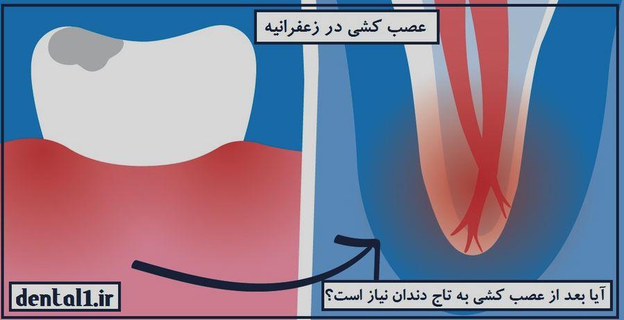 عصب کشی در زعفرانیه