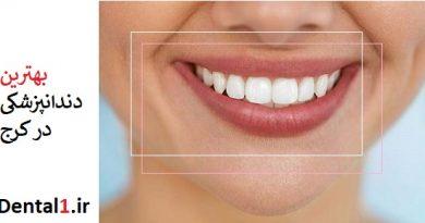 بهترین دندانپزشکی در کرج