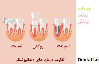 خدمات دندانپزشکی در زعفرانیه