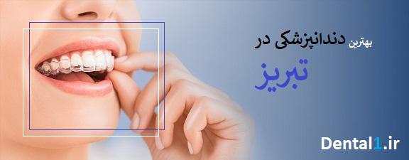 بهترین دندانپزشکی در تبریز