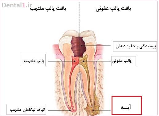 آبسه دندان و درمان ان
