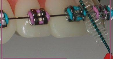 مراقبت های لازم از ارتودنسی و سوالات رایج در مورد ارتودنسی دندان