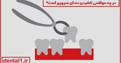 کشیدن دندان در زعفرانیه